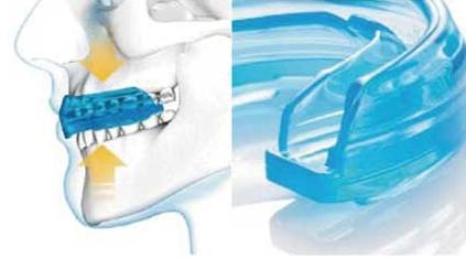 【SHOCK DOCTOR】牙齒護套BRACE (成人用) - 「Webike-摩托百貨」